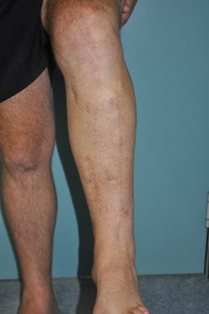 Left leg anterior view