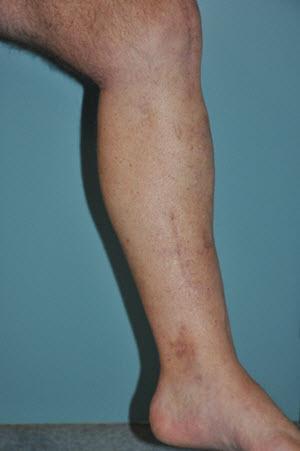 Left leg medial view